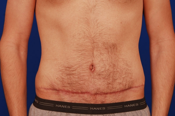 Abdominoplasty-weight-loss-manage